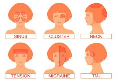 Type of Headache by Location